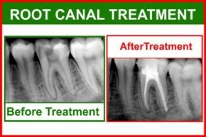 Endodontics (Root Canal Treatment)